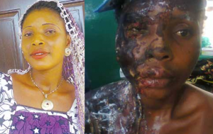 Don't Let Me Die-Woman Bathed With Acid By Ex-lover Cries Out