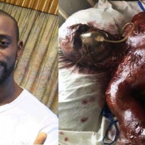PHOTO: Nollywood Director That 'Burnt Actor On Set' Explains That He Fooled The World