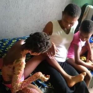 Photos: 9 Year Old Girl Who Survived Kerosene Explosion In Rivers State Needs Help