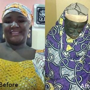 Wicked World: Jealous Lady Pours Acid on Couple While in Bed in Kano (Graphic Photo)