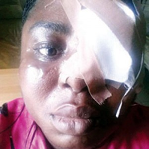 Woman Battered By Her Uncle-in-law Cries Out For Justice (Photo)