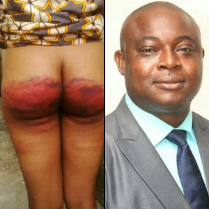 (GRAPHIC PHOTO) Pastor allegedly burns his maid's buttocks for lying