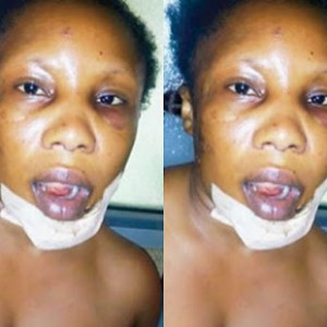 (Photo) Married policeman breaks woman's jaw for withholding girlfriend's whereabouts