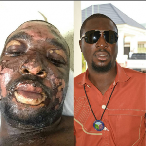 See How This Nigerian Burn Victim Transformed In Just 4 Months