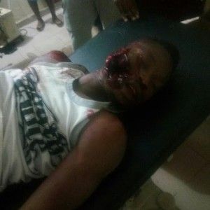 Graphic Photos: Student of Imo State University allegedly shot dead by robbers