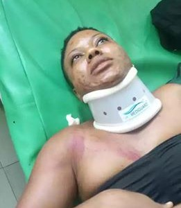Omg! Terrible Accident Along Aba-Port Harcourt Road Leaves Woman Almost Dead (Photos)