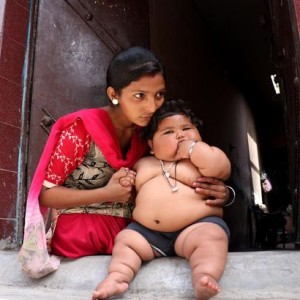 Obese baby girl's weight leaves doctors baffled