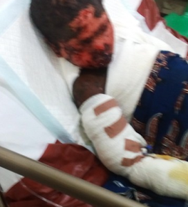 Photos: Little girl left with serious burns after receiving an injection from a nurse in Imo