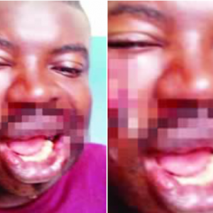 Policeman attacks immigration officer, breaks jaw, tooth