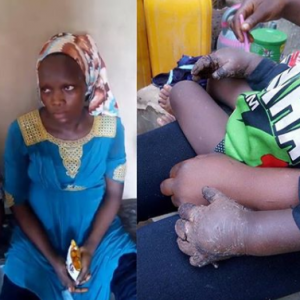 Checkout What This Woman Did To Her 1-yr-old Stepson For Eating Her Food