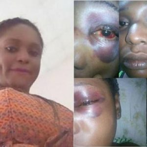 Lady Tells How She Was Beaten Up And Robbed By Okada Man In Lagos