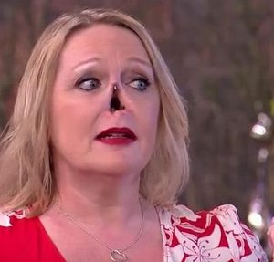 This Morning Viewers Left In Shock As Woman Suddenly Takes Off Her Nose Line On Air