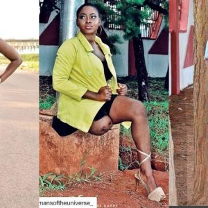 """ I Wasn't Born This Way"" Beautiful Nollywood Actress Amputee Shares Her Inspiring Story"