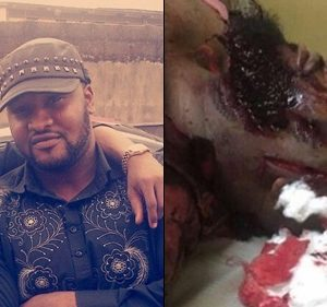 Graphic Photos: Wizkid's Bodyguard, Roy Emmanuel Machete For Defending Him